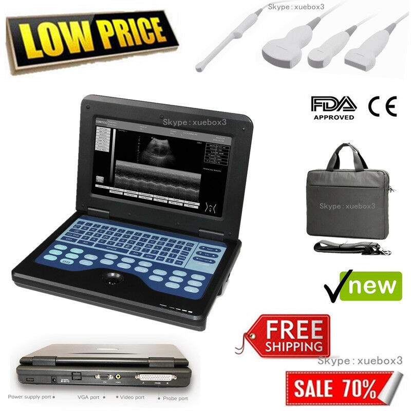 NEW FDA CE PORTABLE ULTRASOUND SCANNER LAPTOP MACHINE CMS600P2 FOR HUMAN 10.1 INCH