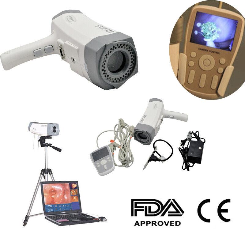 Electronic Colposcope Digital Video SONY Camera 800,000 pixel LED Screen Handle
