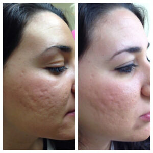MICRONEEDLING ACNE SCAR REMOVING $175