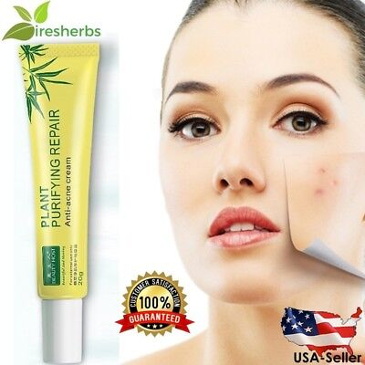 #1BEST Herbal Anti-Acne Scar Cream Spot Acne Removal Ointment Face Skin Care (Best Cream For Acne Spots)