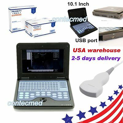 Portable Laptop Machine Digital Ultrasound Scanner System3.5 Convex Probe New