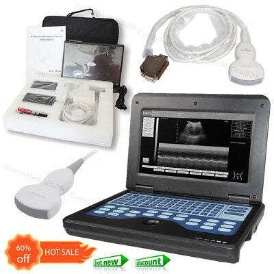 Portable Ultrasound Scanner Digital Laptop Machine 3.5mhz Convex Probeusa Fedex