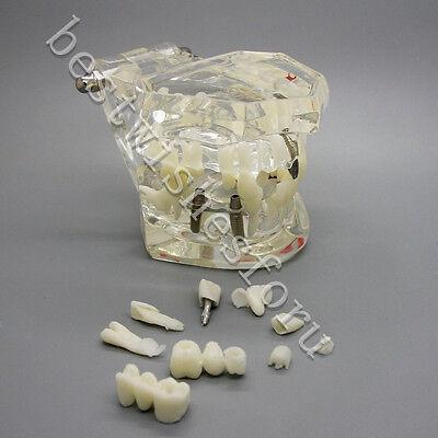 Removable Dental Implant Disease Study Teach Teeth Model With Restoration Bridge