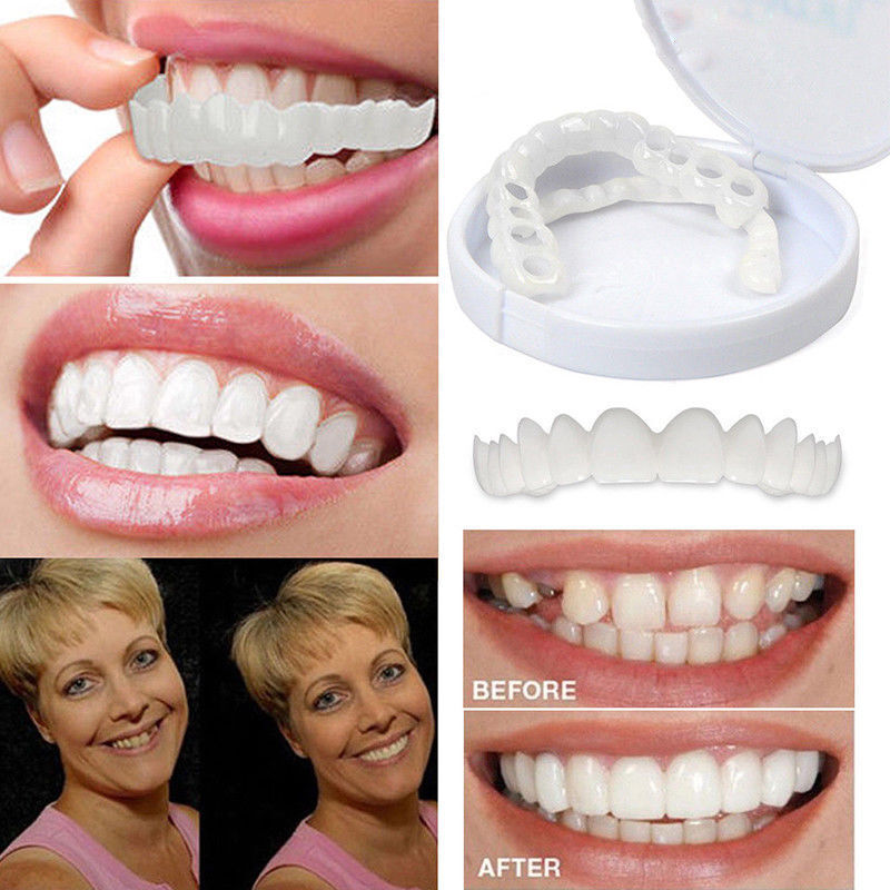 Perfect Smile Instant Teeth Cosmetic Veneers Snap On Comfort Covers Fix One Size Health & Beauty