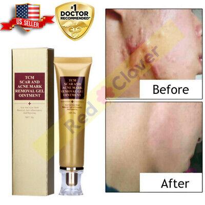 Tratamiento Cicatrizante Crema Reparadora De Cicatrices Manchas Acné Estrías