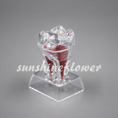 Dental Crystal Base Hard Plastic Removable Teeth Tooth Molar Model For Study