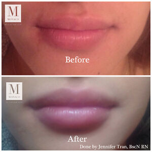 Plump your POUT at Monaco Med Spa !!