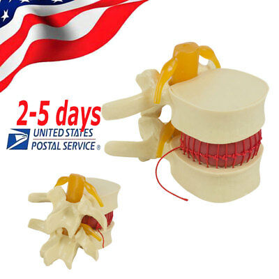 Us11.5 Spine Lumbar Disc Herniation Demonstration Model Medical Dental Use