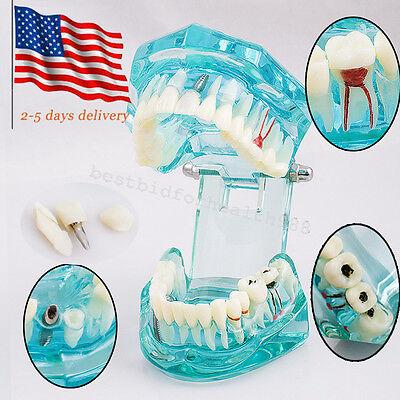 Durable Dental Implant Analysis Teeth Model Tooth Disease With Restoration