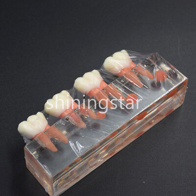 Dental Endodontic Treatment Teeth Model 4 Stage Demonstrates Study Model 4018