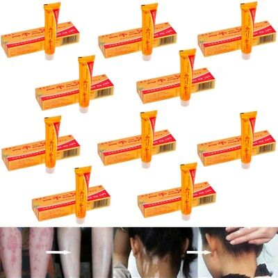 10 Tubes YiGanErJing Natural Herbal Herbal Cream for Psoriasis Eczema Acne Itch