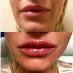 Fall Lip Fillers Promotion