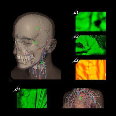 Top Adult Children Usb Vein Viewer Display Lights Imaging Iv Medical Vein Finder