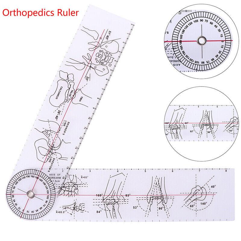 Goniometer Angle Medical Ruler Rule Joint Orthopedics Tool Instruments M^m^