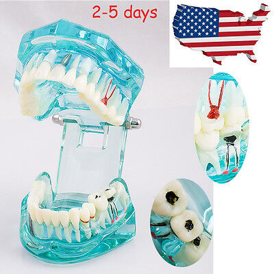 Dental Implant Disease Study Teachin Teeth Model Adult Pathological Tooth Model