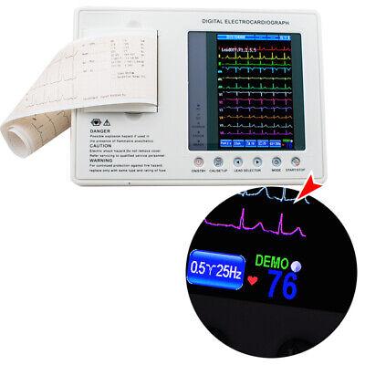 Digital 3 Channel 12 Lead Electrocardiograph Ekg Machineinterpretation Ac Power