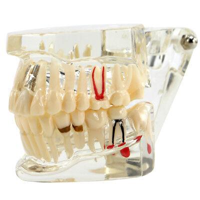 Dental Study Teach Implant Teeth Model Restoration Bridge Caries Denture Educate