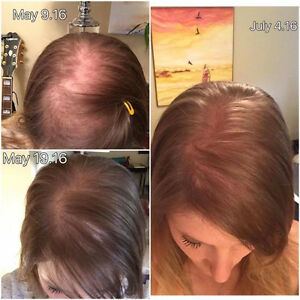 Hair loss. Dry, Course Frizzy Brittle hair. ?