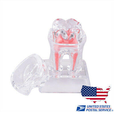 1pc Dental Dentistry Crystal Base Hard Plastic Teeth Model Tooth Molar Model