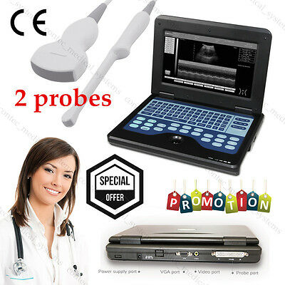 Digital Ultrasound Scanner Portable Laptop Machine 2 Probes Transvaginal Convex