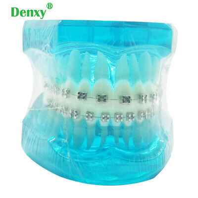 Denxy 1pc Dental Typodont Model Orthodontic Study Dental Orthodontic Bracket