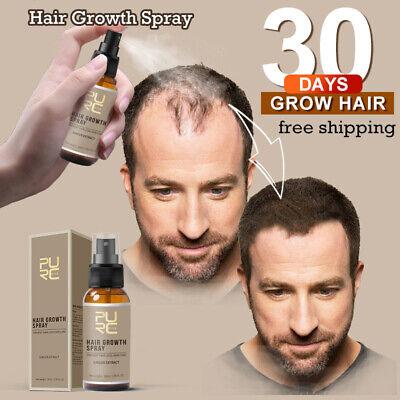 Miracle Hair Growth Spray 30ml New 2019