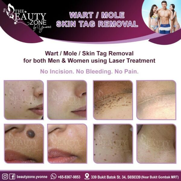 Painless Removal Services For Mole/Wart/Skin Tag For Both Men & Women
