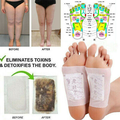 10-100PCS Detox Foot Pads Patch Detoxify Toxins Adhesive Keeping Fit Health Care