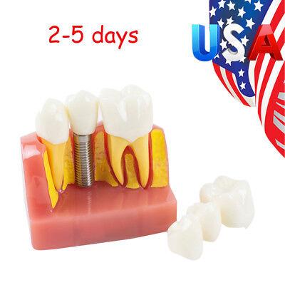Dental Demonstration Teeth Model Implant Analysis Crown Bridge 2017 Dental Lab