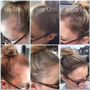 Healthy hair starts with Monat...join my team  get a free SYSTEM