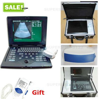 Full Digital Ultrasound Scanner Portable Laptop Machineconvex Probedoppler