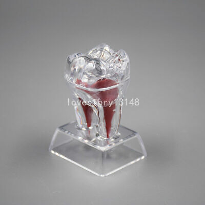 2 Separable Dentistry Crystal Base Hard Plastic Molar Teeth Tooth Model Hot