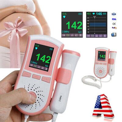 Digital Lcd Fetal Dopplergel Baby Prenatal Heart Rate Monitor 3mhz Probegel Ce