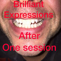 Brilliant Expressions Professional  Laser  Teeth Whitening.