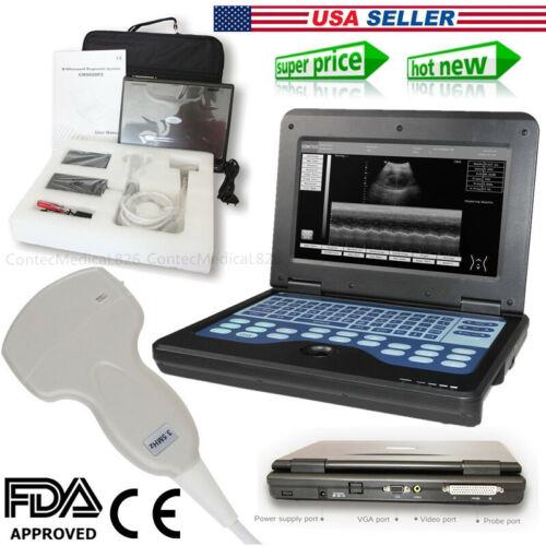 Portable laptop machine Digital Ultrasound scanner, 3.5 Convex probe,USA FedEx
