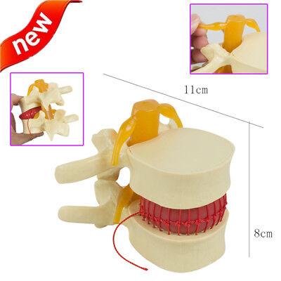 Spine Lumbar Disc Herniation Model Tool 11.5demonstration Dental Medical Study