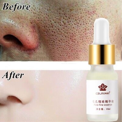 Hyaluronic Acid Serum Moisturizing Essence Shrink Pore Face Whitening Anti-aging