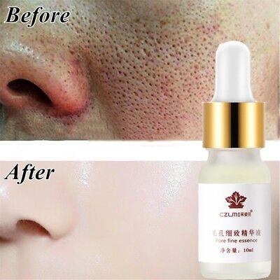 Pore Shrinking Essence Tightening Oil-control Moisturizing Blackhead Remover