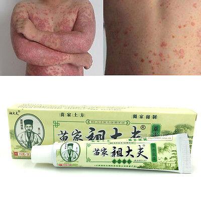 soins de santé peau Inflammation éruption eczéma psoriasis Dermatite crème