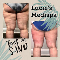 100% MONEY BACK GUARANTEE Cellulite and Fat Reduction Treatment