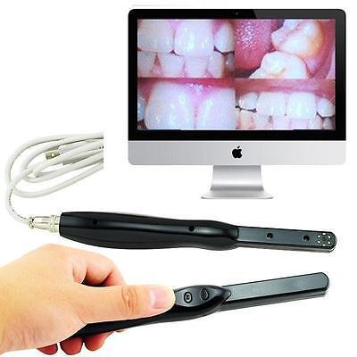 Dental Hd Usb Intra Oral Camera 6 Mega Pixels 14 Cmos Had Cmos Software Fda