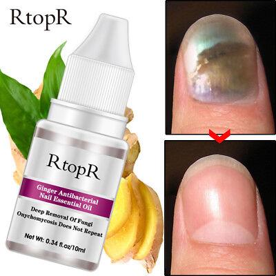 Ginger Antibacterial Nail Essential Oil Repair Cream Nourishing Care Nail Foot