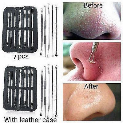 7pcs Blackhead Whitehead Pimple Acne Blemish Extractor Remover Tool Set Black