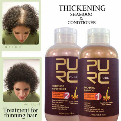 Ginger Juice Hair Shampoo And Conditioner Best Effect Anti Hair Loss Hair