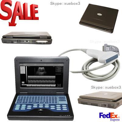 Fda Ce Portable Usb Digital Ultrasound Machine Scanner 7.5 Mhz Linear Probesw