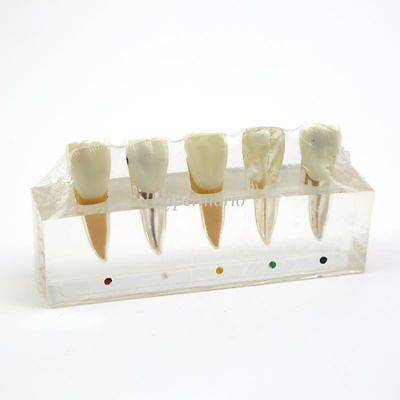 Dental Teeth Model Endodontic Treatment Root Canal Tooth Teach Study Removable
