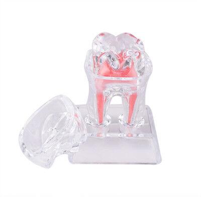 Student Study Dentist Dental Crystal Base Hard Plastic Teeth Tooth Molar Model