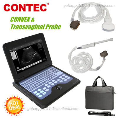 3.5mhz Convex Transvaginal Probe Portable Notebook Laptop Ultrasound Scanner