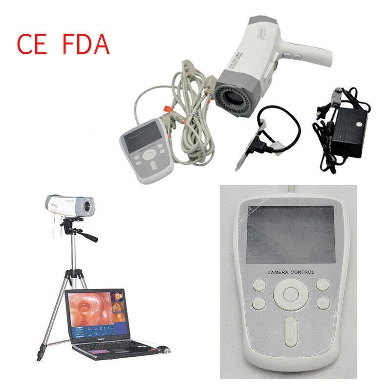 Digital Electronic Colposcope Video SONY Camera 800,000 pixels LED Handle Tripod