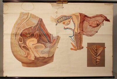 Schulwandkarte Role Map Wall Chart Beckenorgane the Woman Abdomen Organs
